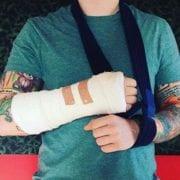 Ed Sheeran Injures Arm; Tour Dates May Shift